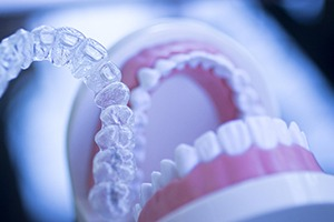 Invisalign aligner in foreground, dental model in background