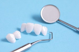 Porcelain veneers, a common part of a smile makeover