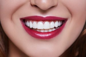 Close-up of woman's beautiful smile after temporary veneers