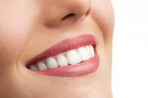 Woman's beautiful smile after gum disease therapy and cosmetic treatment